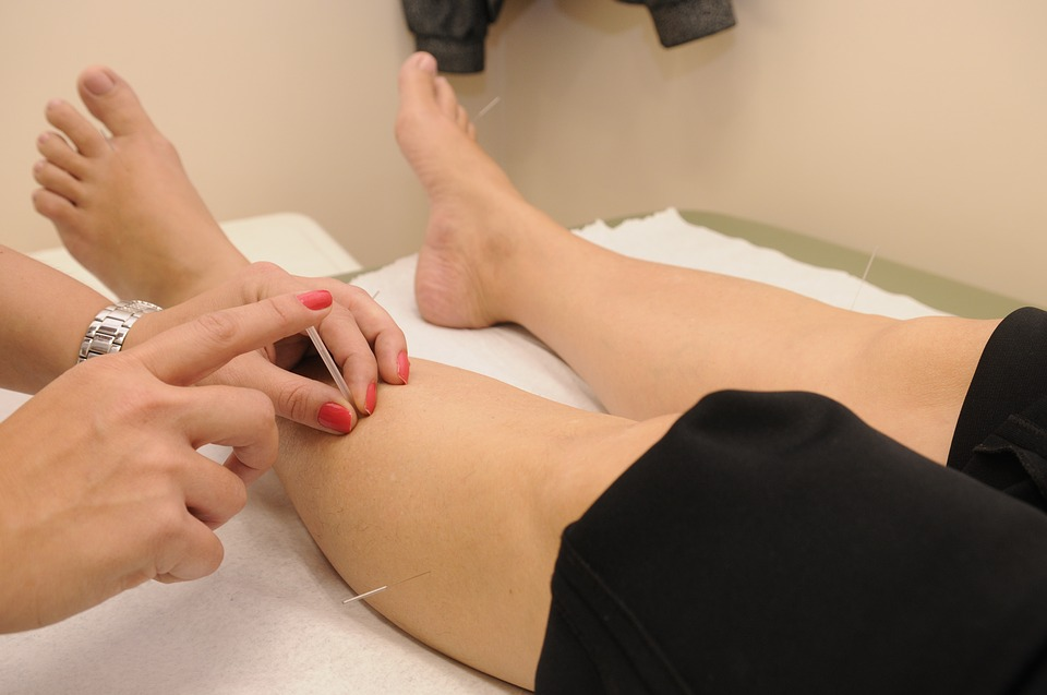 Get Relief With Acupuncture South Yarra