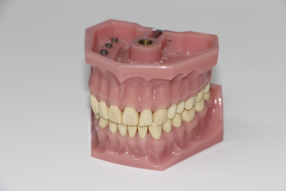 Partial Dentures Brisbane North For You