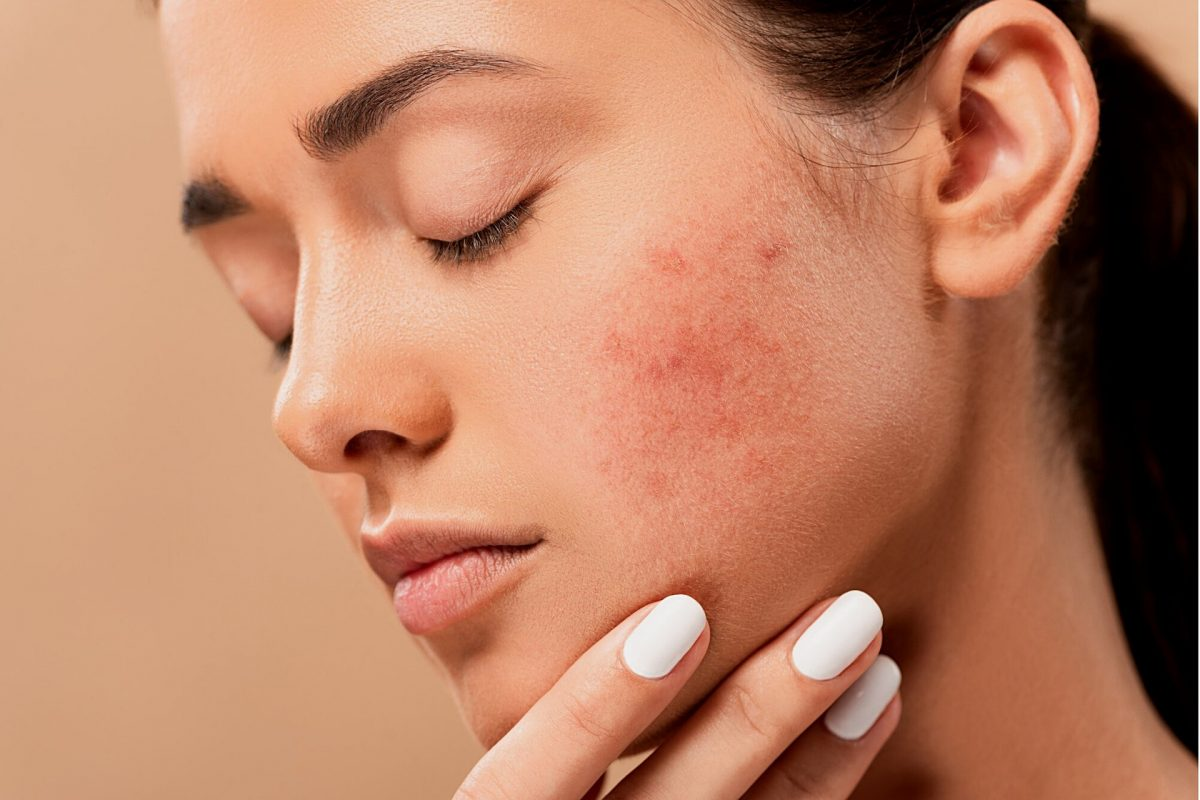 The Truth About Acne Scar Treatment