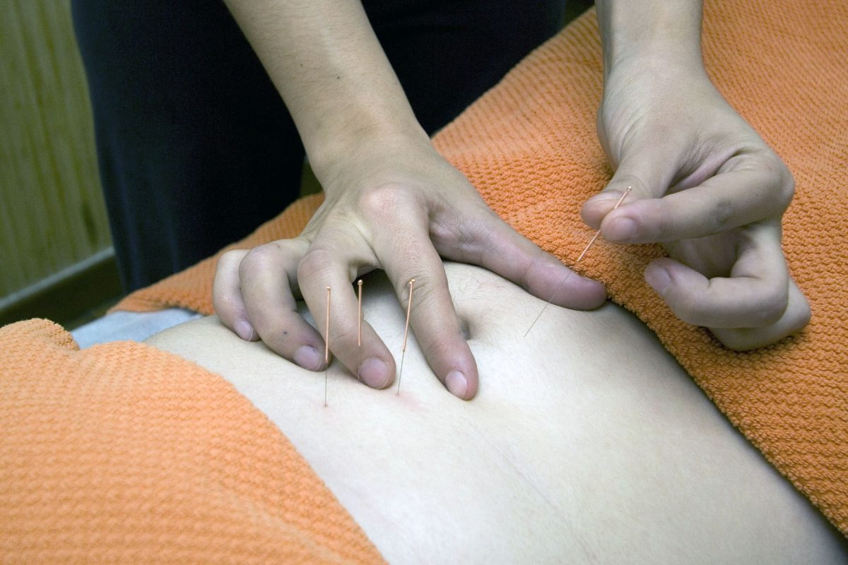 Does Acupuncture For Fertility Work?