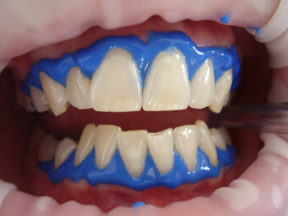 Laser Teeth Whitening–All You Needed To Know